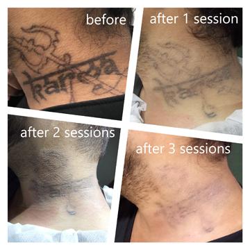 tattoo-Sushil-Treatment-Thumbnail
